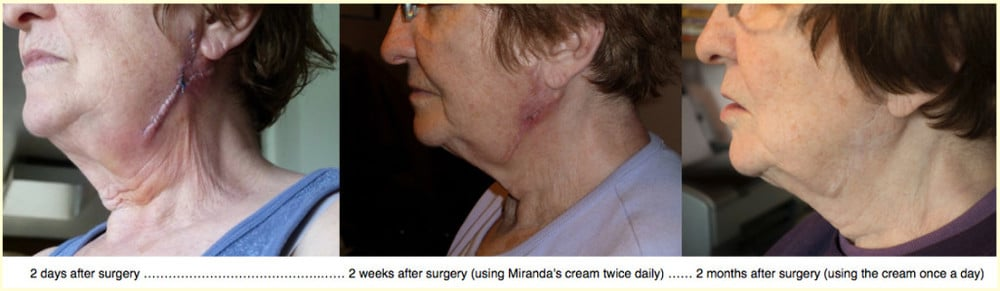 A surgical scar on the before, during and after using Miranda's Scars Cream